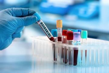 使用AI技能滴血验癌可提早发现五十多种癌症